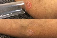 Skin-rash-B_A