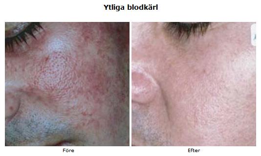 minska porer med laser
